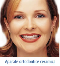 This image has an empty alt attribute; its file name is aparateortodonticceramica.jpg